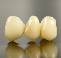 Porcelain Crowns & Bridges Dentist in West Hollywood & Arcadia