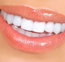 Porcelain Veneers Dentist in West Hollywood & Arcadia