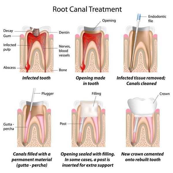 Root Canal Treatment West Hollywood