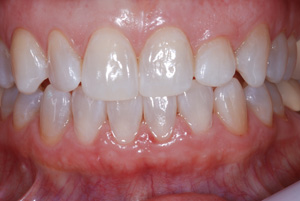 After Teeth Whitening Treatment