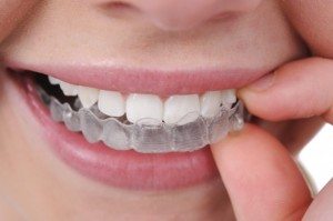 invisalign_green_dental-1024x682