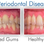 what is Periodontal disease