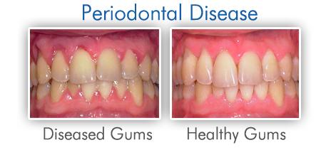 what is Periodontal disease