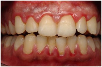 Periodontal disease