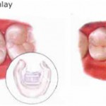 Dental Inlays and Outlays