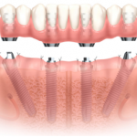 All on 4 Dental Implant Treatment in Arcadia