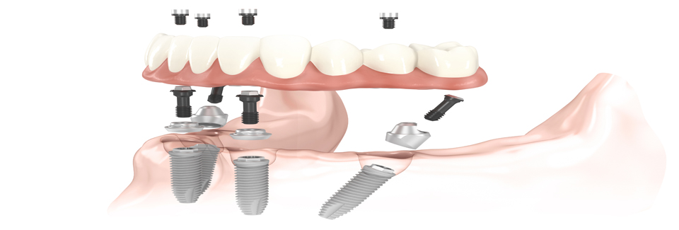 all on 4 dental implants treatment concept