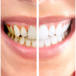 Teeth Whitening treatment in Arcadia