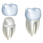 West Hollywood Porcelain crowns