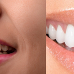 Invisalign vs. Veneers