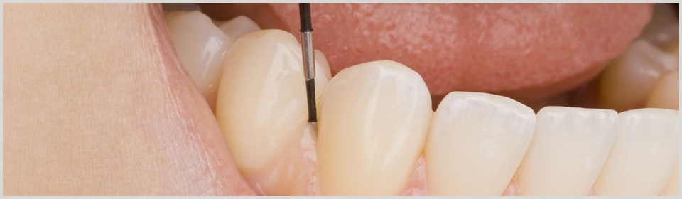 Periodontal Dentist West Hollywood