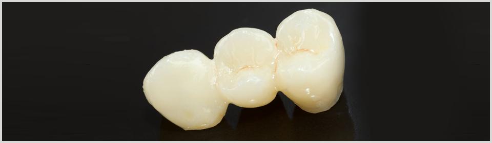 Porcelain Crowns & Bridges