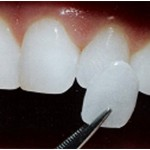 Porcelain Veneers treatment