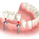 Dental Implants procedure