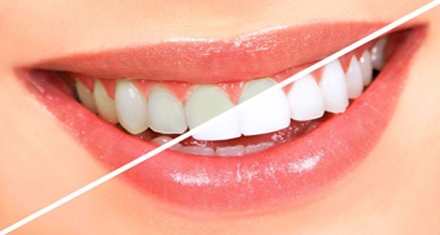 Teeth Whitening treatment