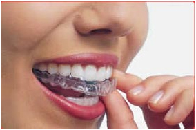 Invisalign treatment in West Hollywood