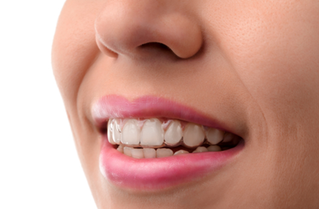 Invisalign West Hollywood