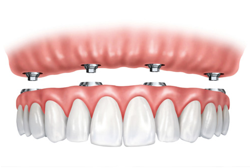 Implant Supported Dentures in  Arcadia