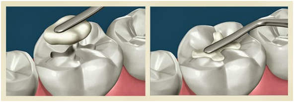 White Composite Fillings