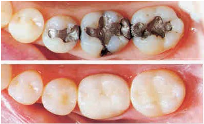 Composite fillings in Arcadia