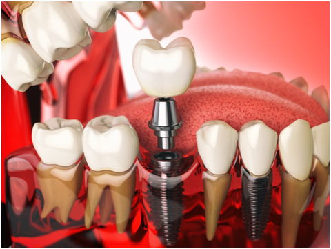 dental implants in Arcadia