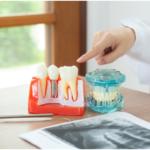 Dental Implants in Arcadia